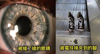 6張「看完這輩子會留下陰影」的不安全照片。 3 讓人一看就想秒關視窗!(建議不要看)